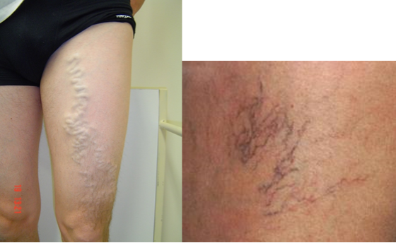 This is not my leg - but a close comparison...