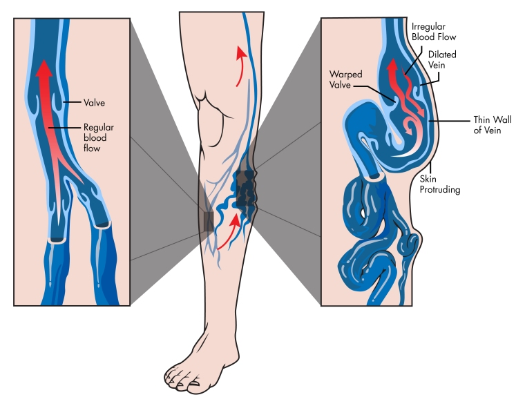 Vein_Anatomy_112